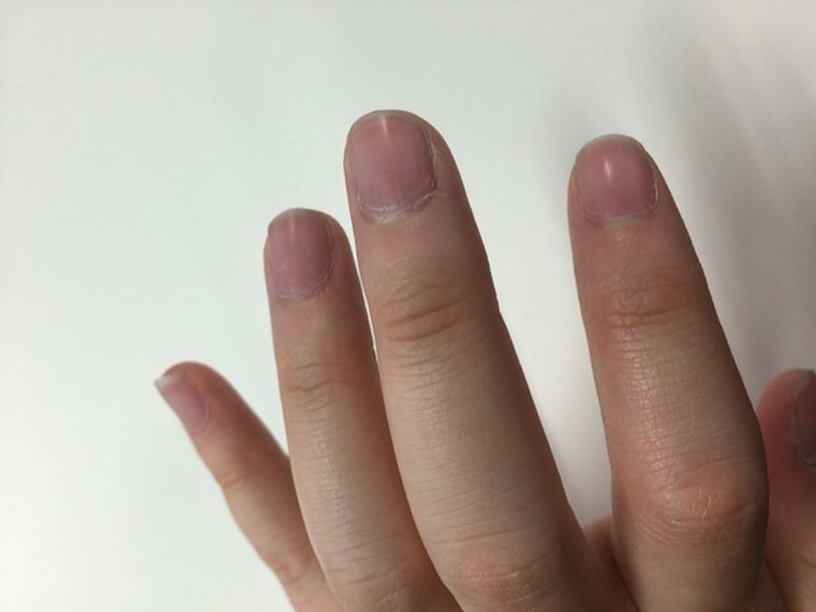 子どもの爪噛みをやめさせるにはどうすればいいですか?